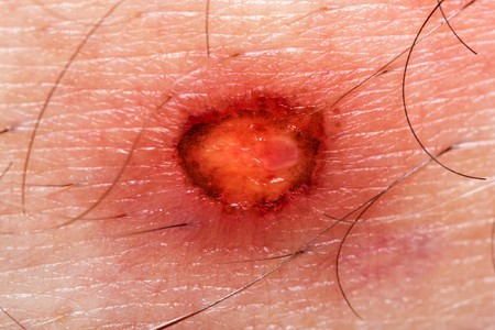 wound care: Physical injury blood wound skin human burn sore