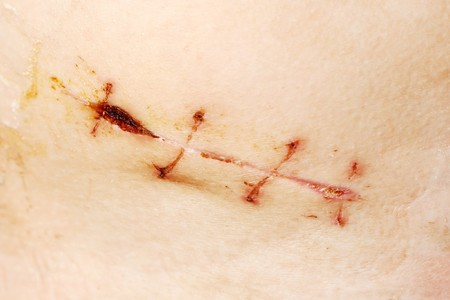 appendix: Appendix removal medicine aid surgical suture scar Stock Photo