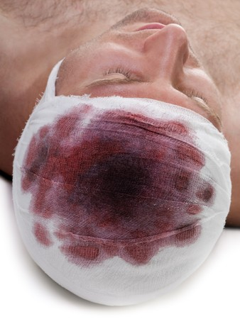 Bandage on human brain concussion blood wound head Stock Photo