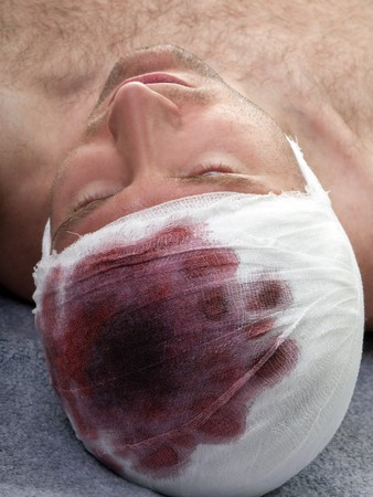 Bandage on human brain concussion blood wound head photo