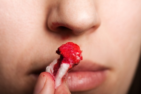 holding nose: Wound nosebleed - adult human nose injury blood Stock Photo