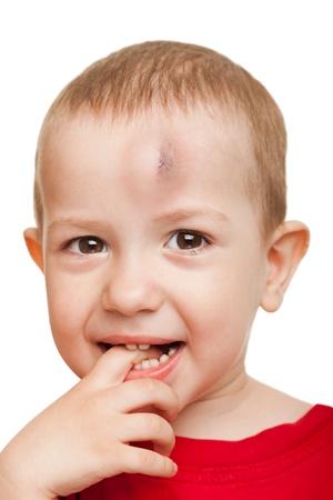 primeramente: Hematoma de sangre de lesiones f�sicas en ni�o humano herida