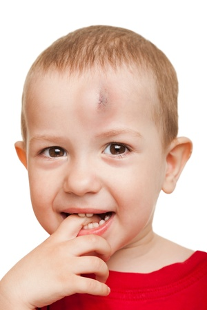 Physical injury blood bruise on wound human child photo