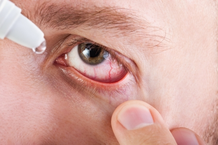 irritating: Medicine healthcare liquid eyedropper on human eye