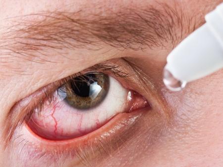 Medicine healthcare liquid eyedropper on human eye