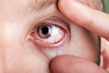 capillary: Medicine healthcare blood capillary human eye pain Stock Photo