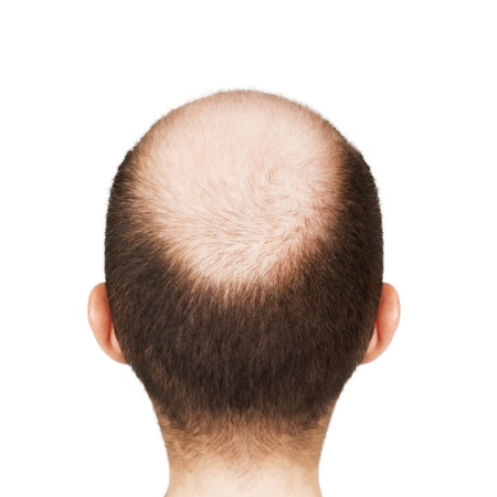 pelade: Human alopecia or hair loss - adult men bald head