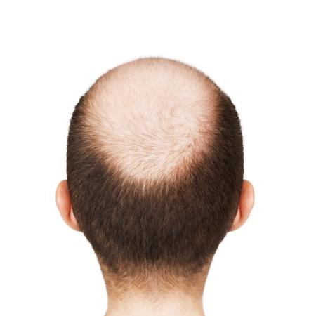 calvitie: Perte humaine, alop�cie ou cheveux - t�te chauve hommes adultes Banque d'images