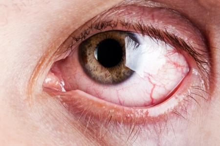 globo ocular: Dolor de medicina sanitaria sangre capilar ojo humano