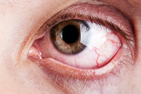 close up eyes: Medicine healthcare blood capillary human eye pain Stock Photo