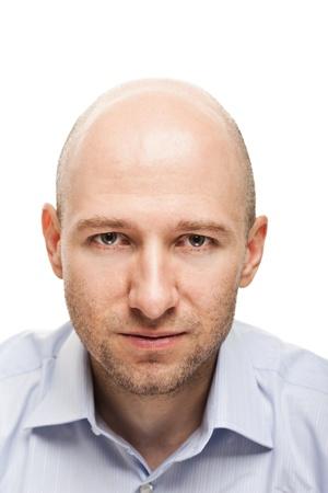 calvicie: Retrato masculino - hombre adulto serio mirando cara