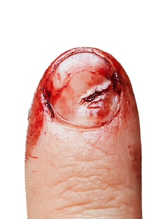 Körperliche Verletzungen Blut gewickelt menschlichen Hand Fingernagel