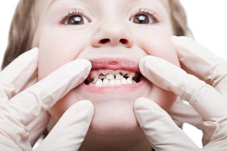 karies: Odontologi och vård - mänsklig patient öppen mun visar karies tänder förfall