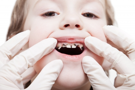dental caries: Dental medicine and healthcare - dentist examining little child boy patient open mouth showing caries teeth decay Stock Photo