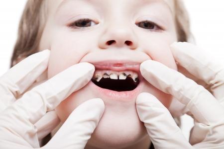 karies: Odontologi och vård - tandläkare undersöker litet barn pojken patienten öppna munnen visar karies tänder förfall
