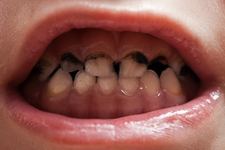 Dental medicine and healthcare - human patient open mouth showing caries teeth decay Stock Photo - 12758422