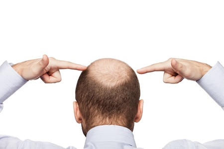shaved: Human alopecia or hair loss - adult man hand pointing his bald head Stock Photo