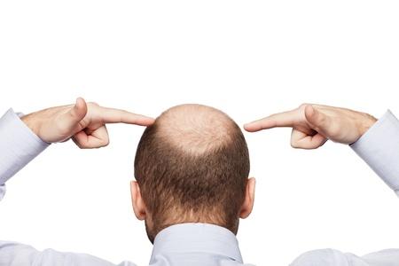 calvicie: Humanos alopecia o caída del cabello - la mano del hombre adulto que apunta a su cabeza calva