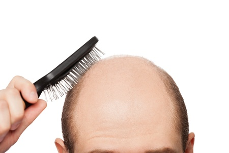 comb hair: Human alopecia or hair loss - adult man hand holding comb on bald head Stock Photo