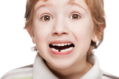 Little smiling child boy showing his first baby milk or temporary tooth fall out in open mouth
