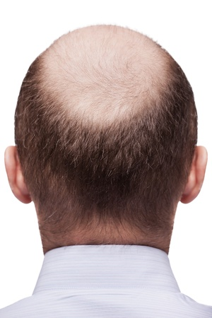Human alopecia or hair loss - adult man bald head rear or back view photo