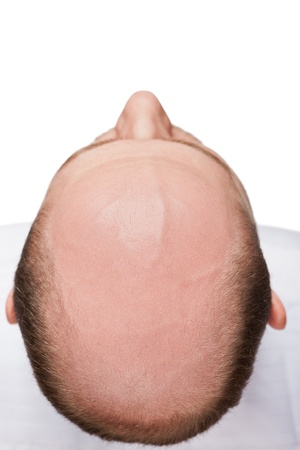 pelade: Human alopecia or hair loss - adult man bald head top view