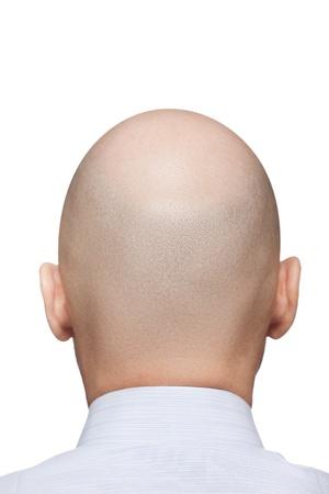 calvicie: Humanos alopecia o caída del cabello - posterior adulto hombre calvo o Vista posterior de la