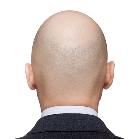 shaved: Human alopecia or hair loss - adult man bald head rear or back view Stock Photo