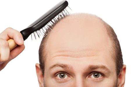 Human alopecia or hair loss - adult man hand holding comb on bald head Standard-Bild