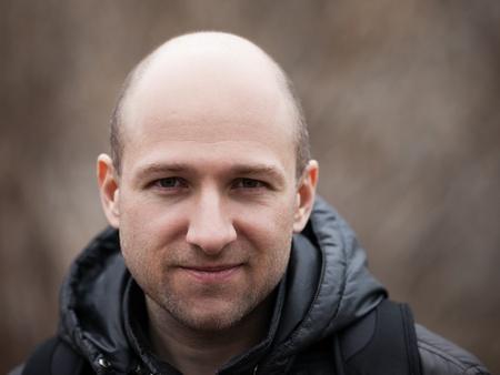bald men: Human alopecia or hair loss - smiling adult man bald head