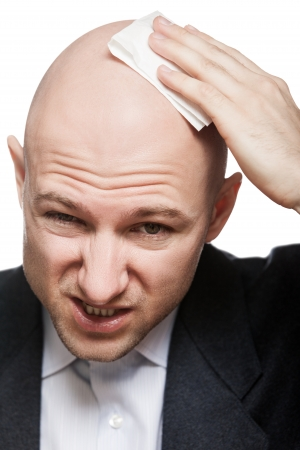 Tired or upset businessman wiping or drying bald sweat head with handkerchief or tissue photo