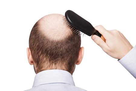 calvitie: Human alop�cie ou perte de cheveux - peigne main d'adulte homme tenant sur la t�te chauve