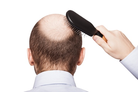 Human alopecia or hair loss - adult man hand holding comb on bald head Stockfoto