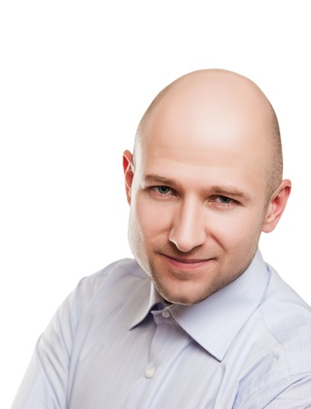 pelade: Human alopecia or hair loss - smiling adult man bald head