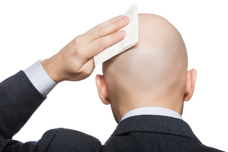 nape: Tired or upset businessman wiping or drying bald sweat head with handkerchief or tissue Stock Photo