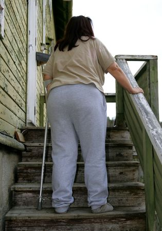Obese woman with crutch Stock Photo