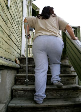 crutch: Obese woman with crutch Stock Photo