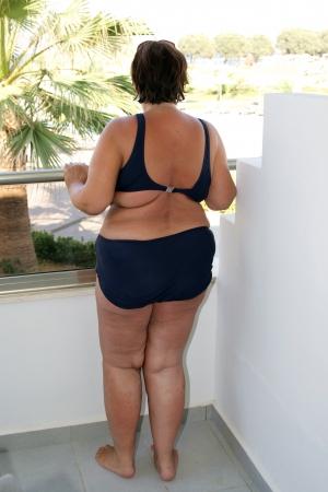 mujer gorda: Mujer obesa en bikini