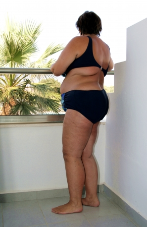 Obese woman in bikini photo