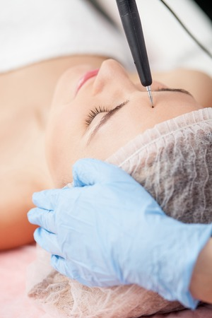 fractional: Close up of arms of skillful beautician touching equipment to female forehead. The woman is lying with relaxation. Here eyes are closed with pleasure