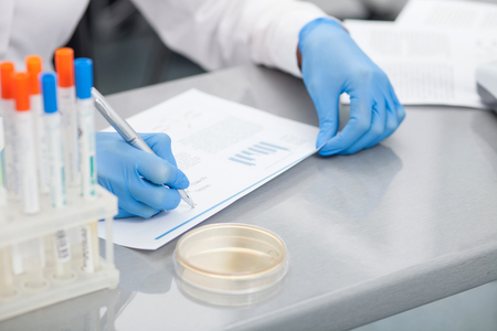 experimentation: Close-up of hands of laboratory assistant writing down the results of experiment. She is sitting at the desk in lab