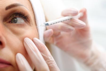 여성의 주름 눈 영역에 hyaluronic acid를 주입하는 의사 손의 닫습니다