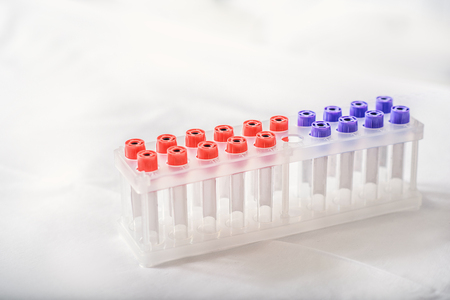 sterile: Close-up of sterile flasks for blood test in clinic Stock Photo