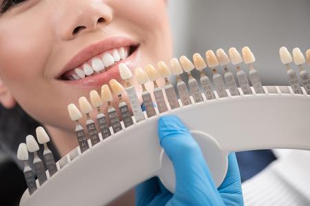 Zahnimplantat umschließt den glücklichen weiblichen Mund Standard-Bild - 81158951