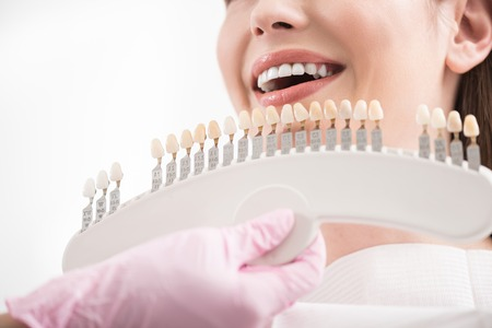 odontology: Stomatologist choosing right implants to client