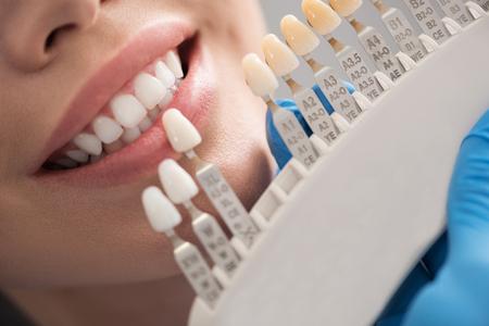 Tandkroon die dichtbij vrouwelijke mond situeert Stockfoto