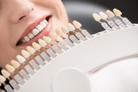 Artificial teeth locating near woman lips Stock Photo