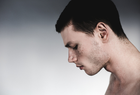 Side view sad man having many freckles on face. Copy space. Sorrowful guy concept