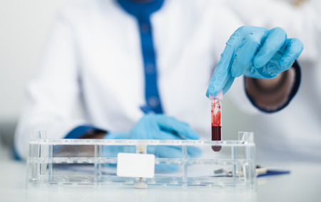 Professional facility investigations in healthcare system. Close up portrait of female laboratory worker putting test tube with blood into medicine board