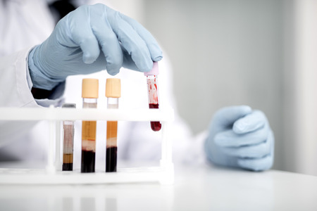 Careful medical worker wearing rubber gloves while working with blood samples in test tubes